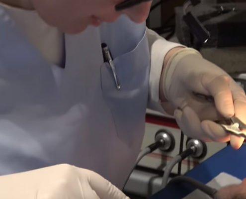Chirurgia mininvasiva per curare poliposi nasale e ipertrofia dei turbinati
