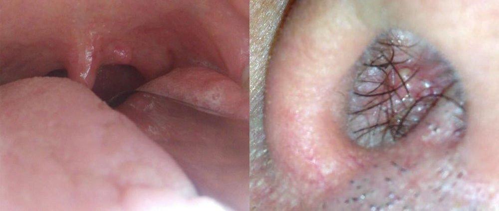 quando il papilloma virus diventa tumore