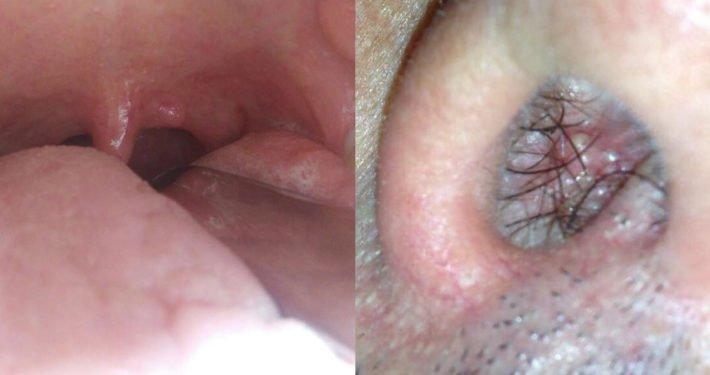 Papilloma virus