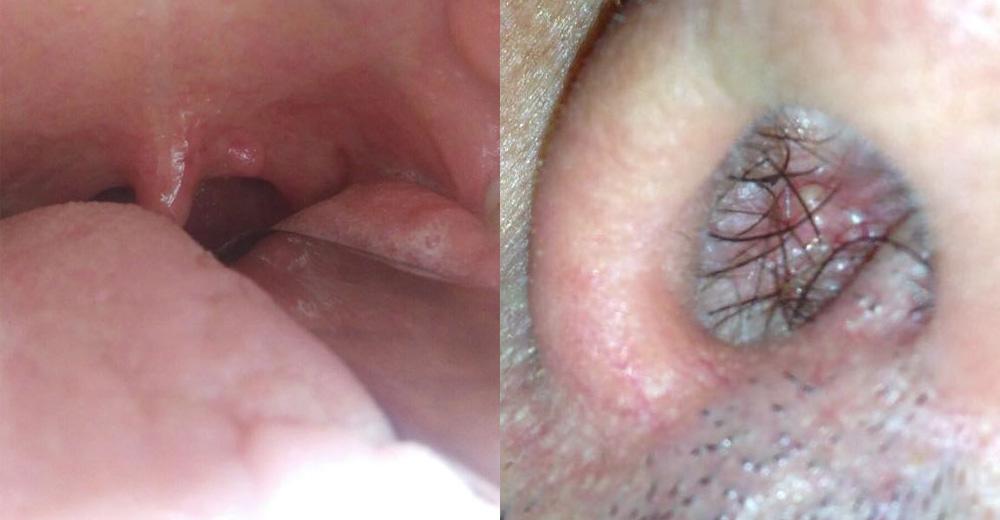 papiloma in gola