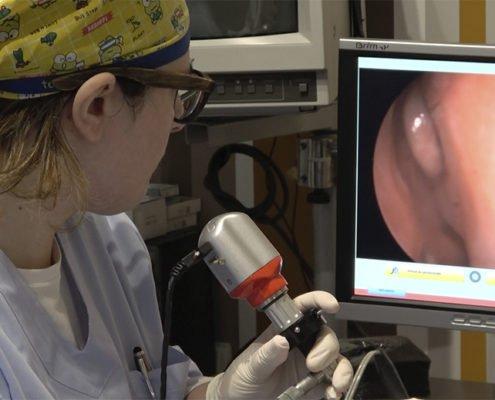 Laser chirurgia nel trattamento dell'ipertrofia dei turbinati