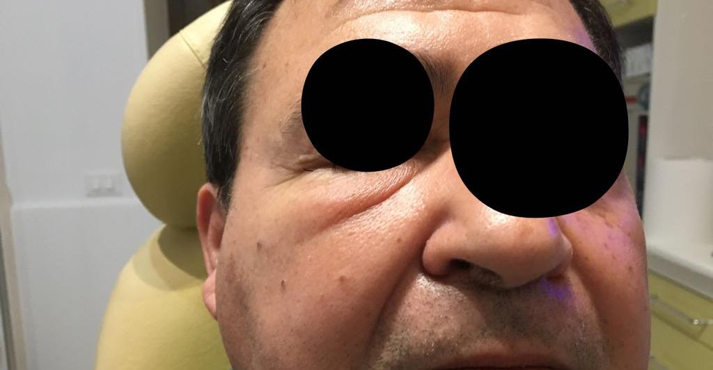 qual è linfezione da cellulite facciale