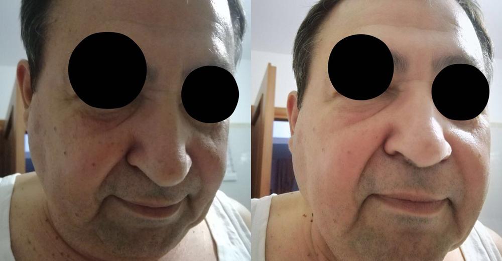 Foto 3 - La completa risoluzione della patologia dopo dieci giorni di terapia