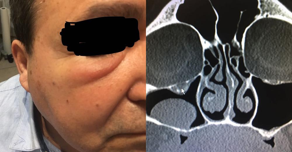 Foto 1 - Il paziente nel momento in cui si è presentato alla osservazione della dottoressa