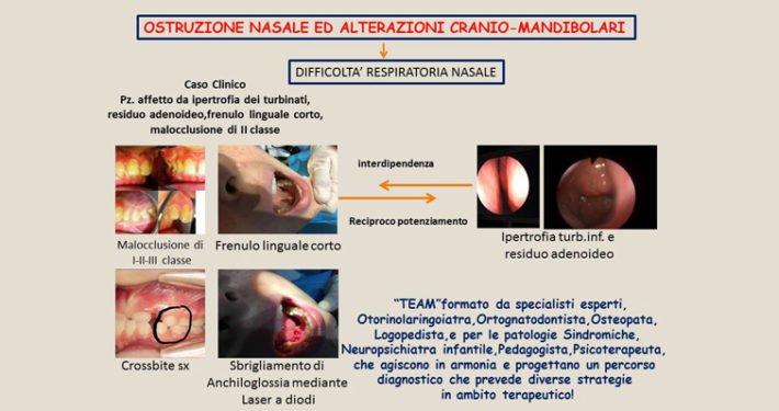 Ostruzione nasale