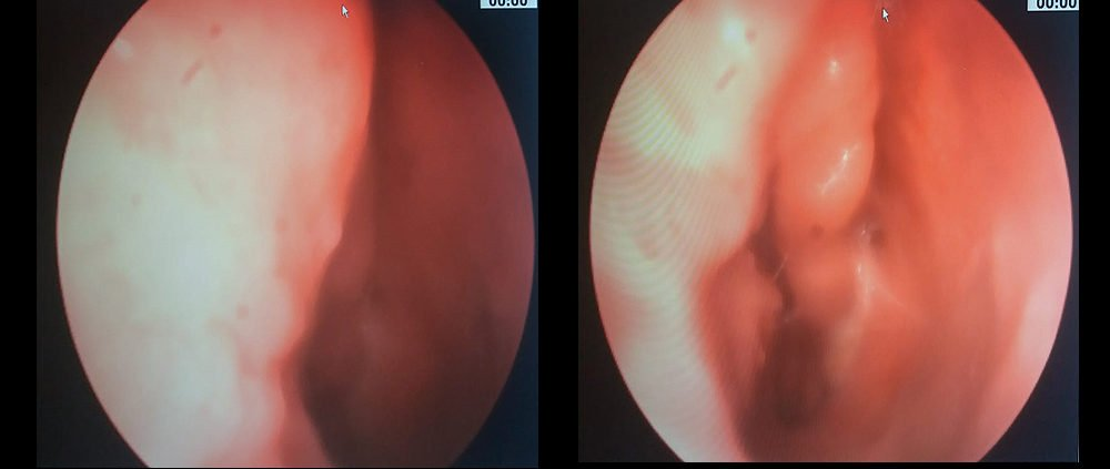 Paziente in followup per pregresso intervento di asportazione papilloma invertito fossa nasale sinistra. In atto nessuna recidiva