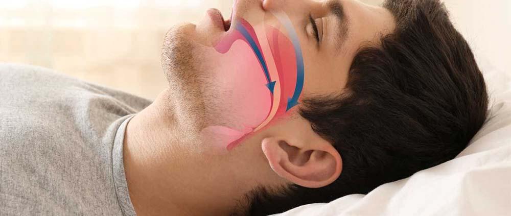 Protocollo Osas Soluzione Innovativa Al Russamento E Alle Apnee Notturne