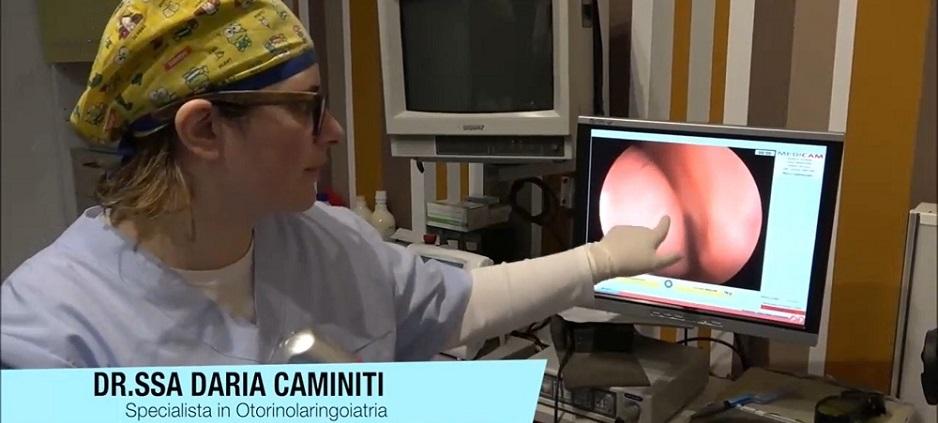 Ipertrofia turbinati poliposi nasale laser ottico