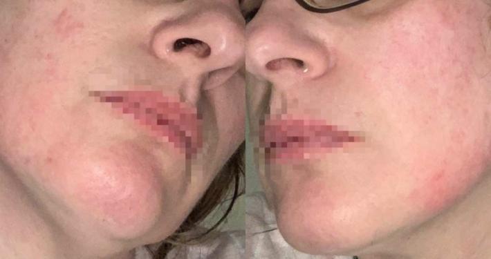Reazioni avverse per mascherina covid