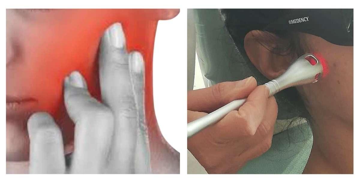 Acufene nuovo trattamento manipolo laser