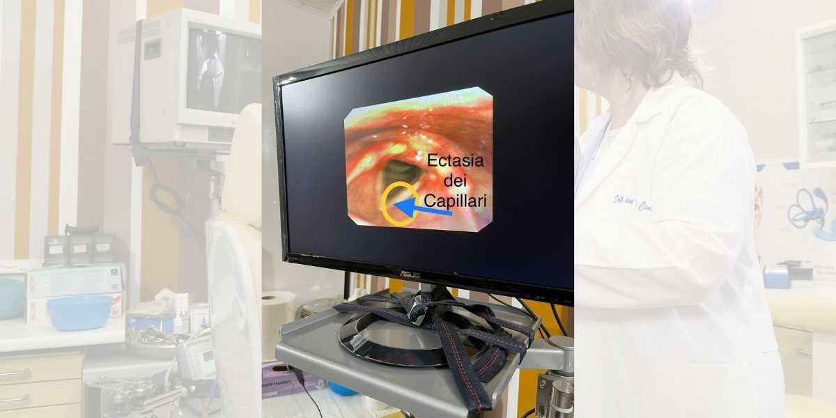 Ectasia dei capillari Foto 1